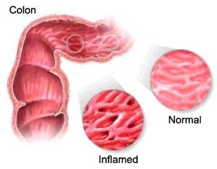 Colon irritabile sintomi cause e cure - Andare spesso in bagno a defecare ...
