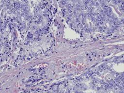 anticorpo2
