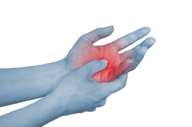 Artrite reumatoide u2013 farmajet