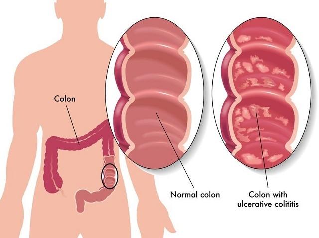 Colon irritabile sintomi cause e cure farmajet news farmajet - Andare spesso in bagno a defecare ...