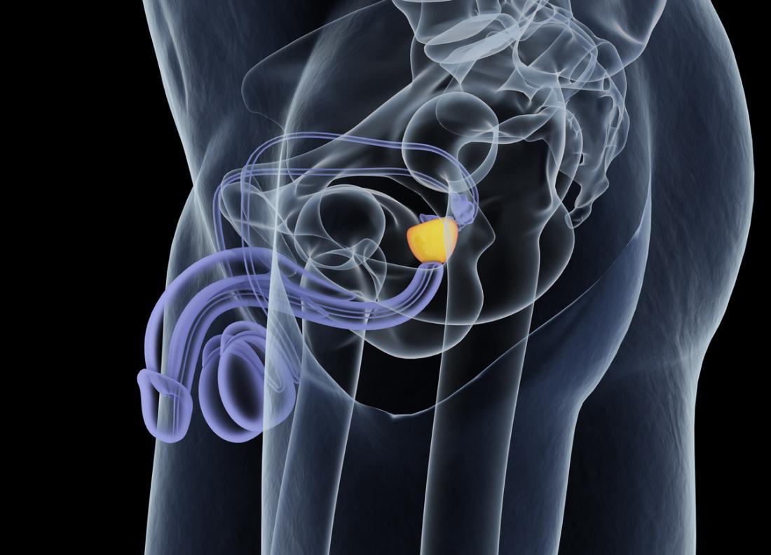 la prostatite può essere causata da std