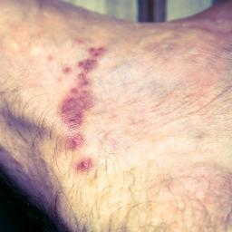 linee rosse sulla pelle dopo il calore
