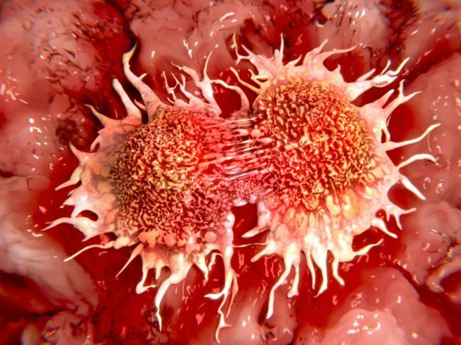 tumore1