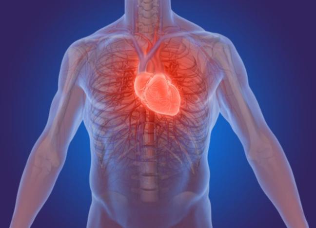 infarto1
