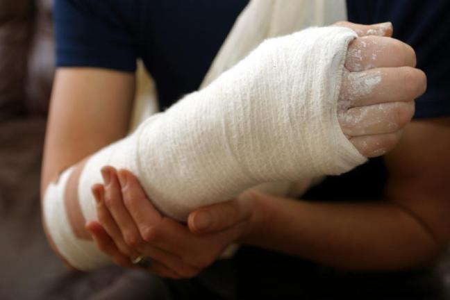 frattura al braccio farmajet