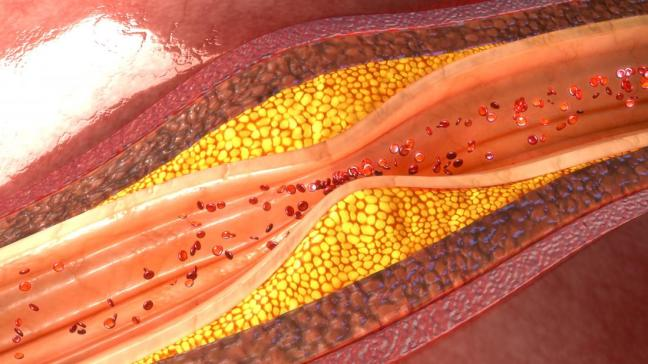 aterosclerosi farmajet