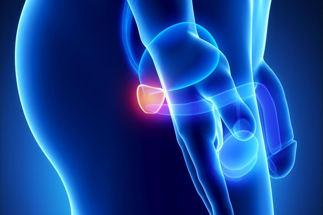 come gestire ingrossamento della prostata