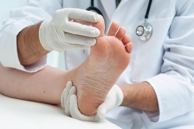 eczema del piede farmajet