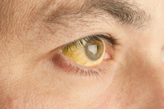 occhio giallo farmajet