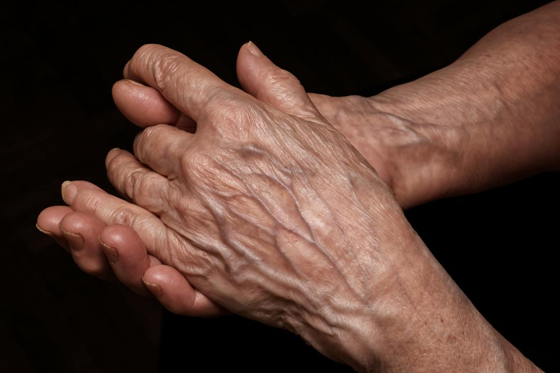 come ottenere le braccia diradate