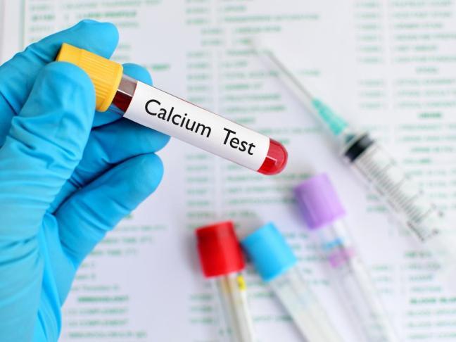 calcium test.jpg