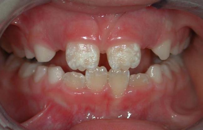 denti bianchi 2