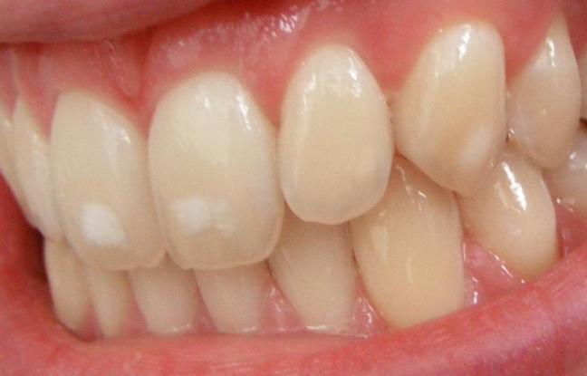 denti bianchi farmajet