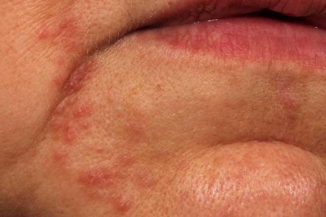 dermatite alla bocca