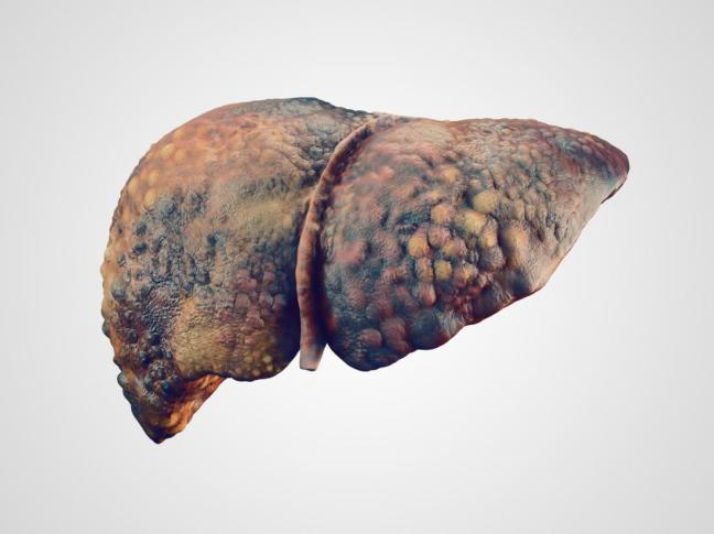 fegato malato.jpg