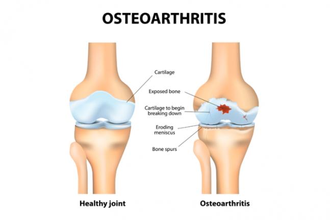 osteoartrite farmajet.png