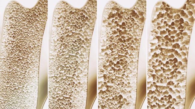 osteoporosi farmajet 2.jpg