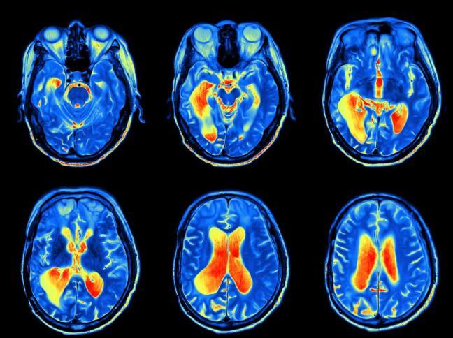 scan cervello.jpg