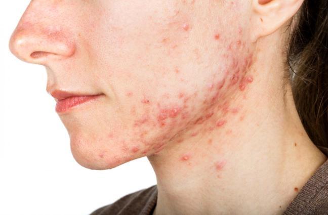 donna con acne.jpg