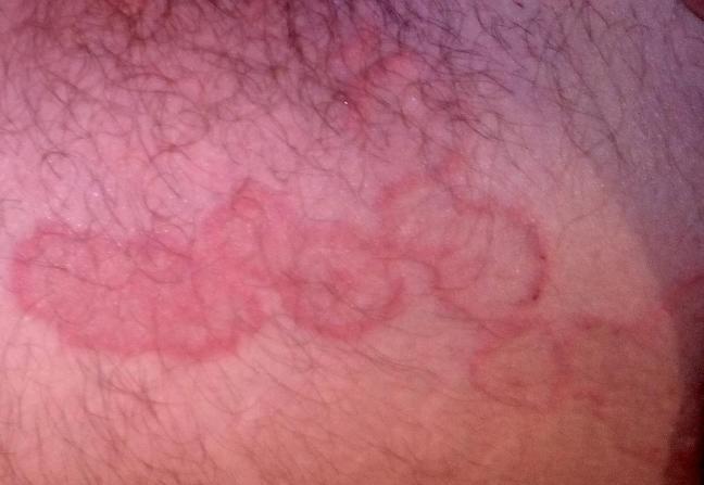 eczema 1.jpg