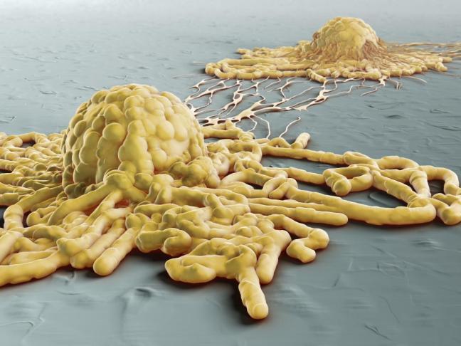 metastasi 1.jpg