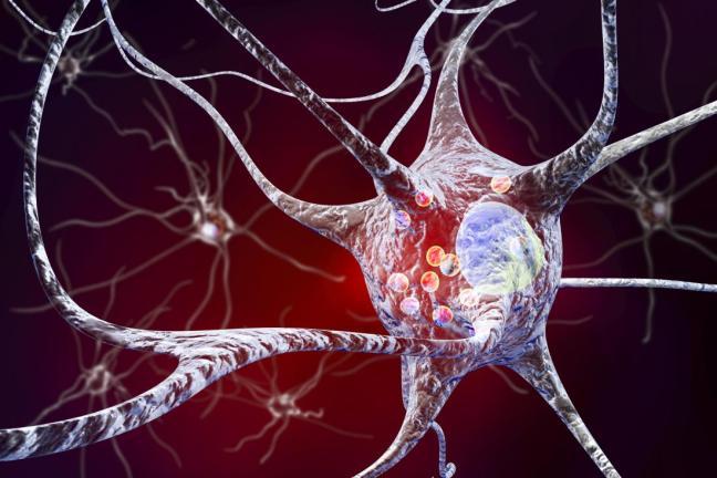 neurone nel parkinson.jpg