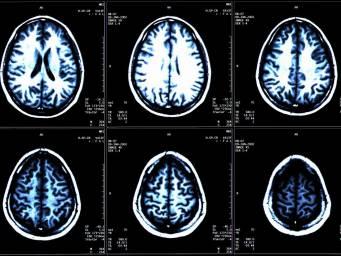 cervello 1.jpg
