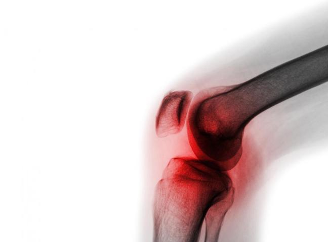 5 esercizi per rafforzare le ginocchia doloranti