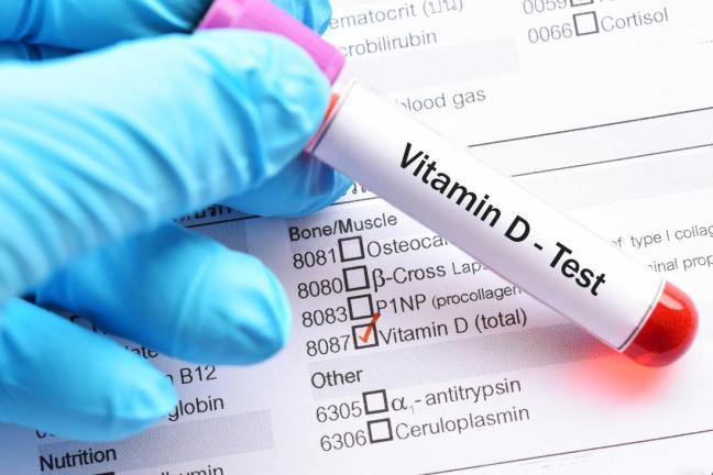test vitamina d.jpg