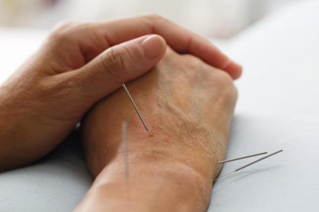 agopuntura.jpg