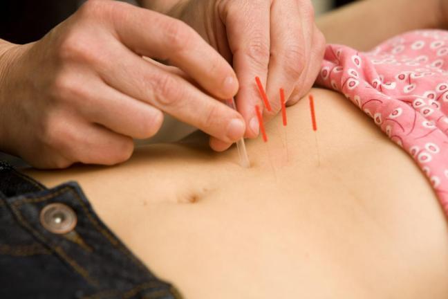emicranea agopuntura