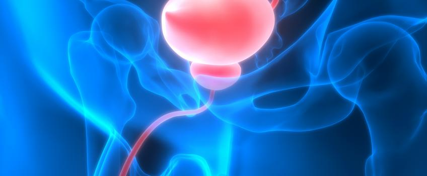 la tua prostata può venire fuori?